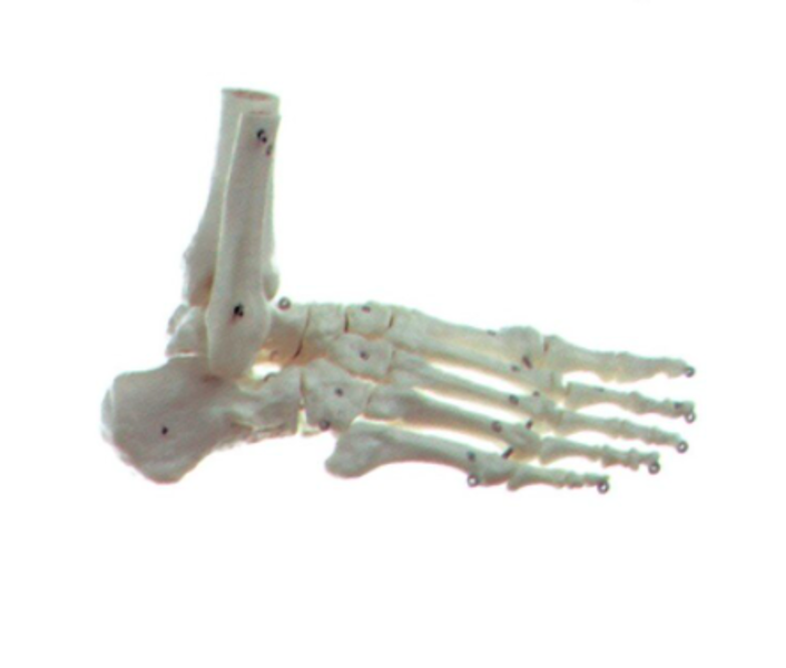 Pēdas skelets, 1gb